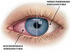 Як зняти почервоніння очей - linza.com.ua