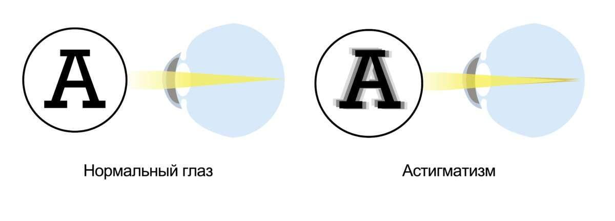 Особенности контактных линз при астигматизме - linza.com.ua